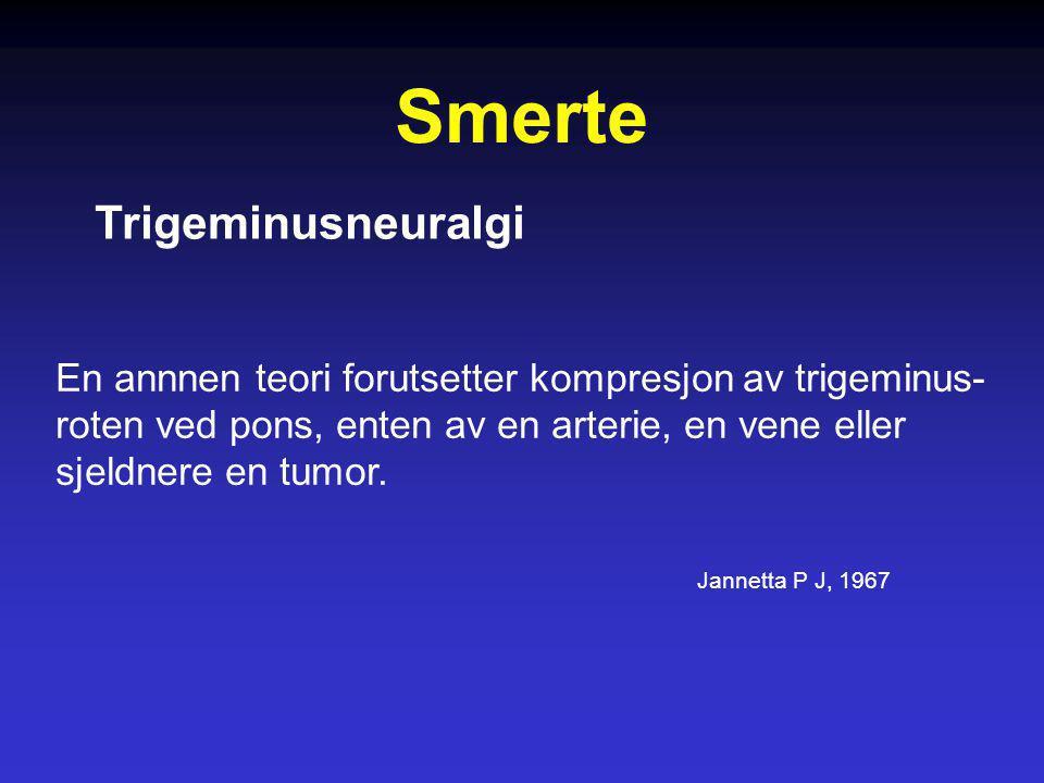 Smerte Trigeminusneuralgi En annnen teori forutsetter kompresjon av trigeminus- roten ved pons, enten av en arterie, en vene eller sjeldnere en tumor.