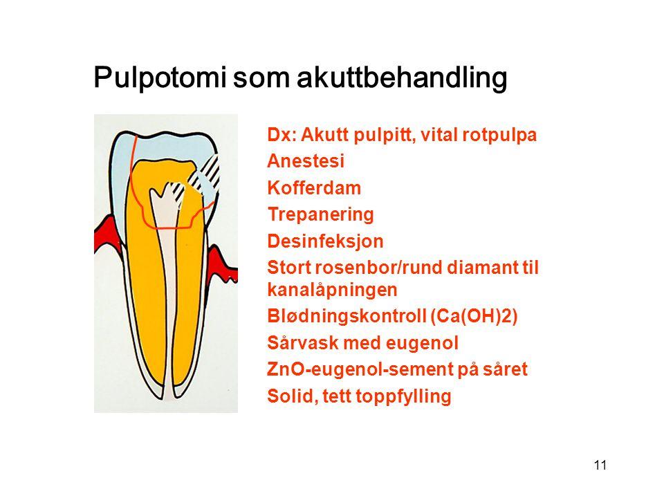 11 Dx: Akutt pulpitt, vital rotpulpa Anestesi Kofferdam Trepanering Desinfeksjon Stort rosenbor/rund diamant til kanalåpningen Blødningskontroll (Ca(O