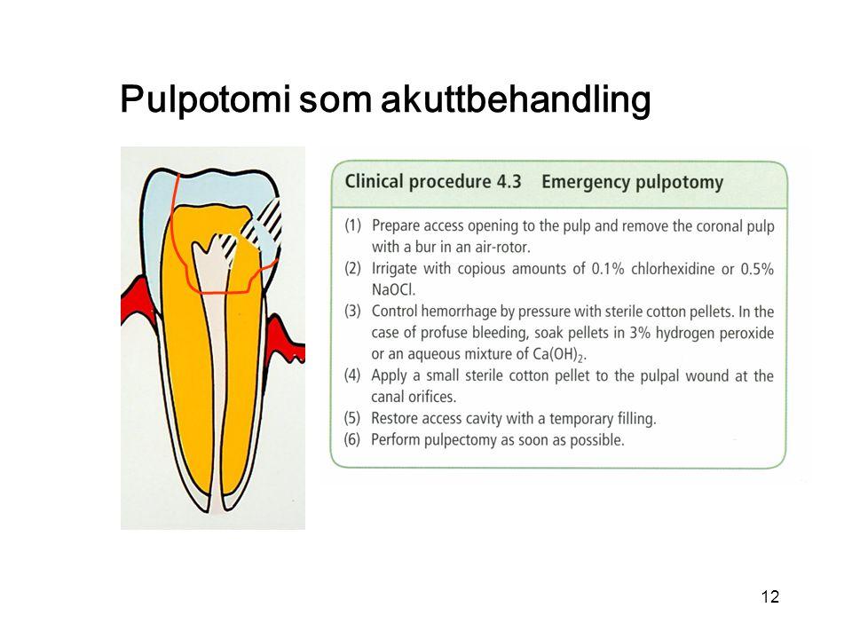 12 Pulpotomi som akuttbehandling