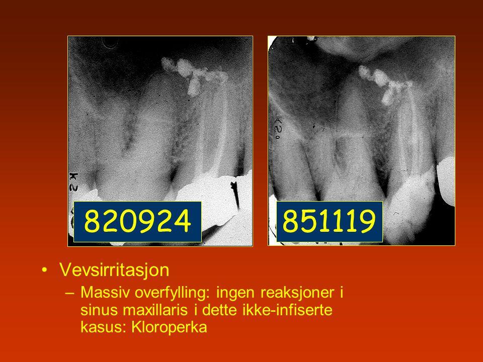 Vevsirritasjon –Massiv overfylling: ingen reaksjoner i sinus maxillaris i dette ikke-infiserte kasus: Kloroperka 820924851119