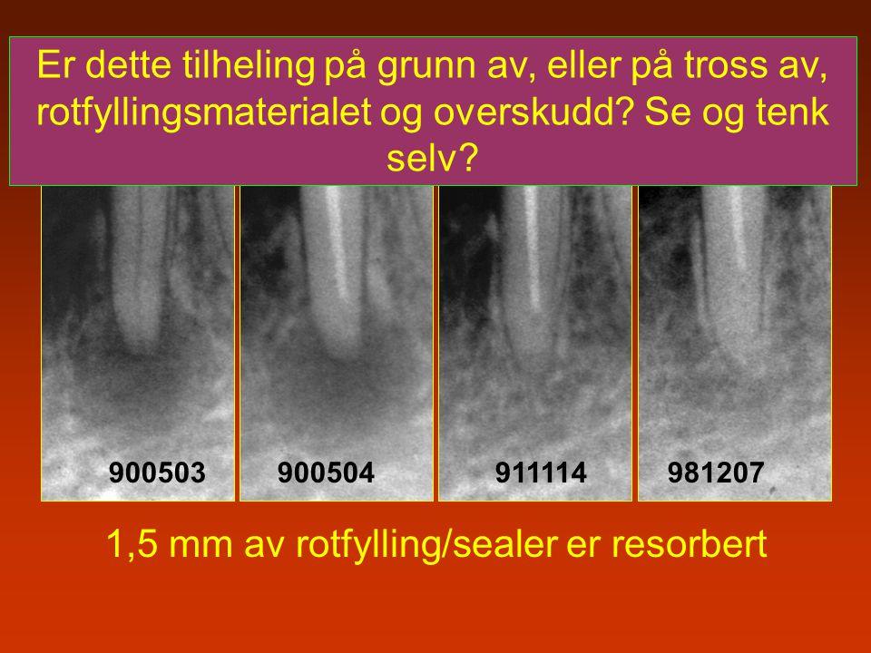 900503 900504 911114 981207 1,5 mm av rotfylling/sealer er resorbert Er dette tilheling på grunn av, eller på tross av, rotfyllingsmaterialet og overs