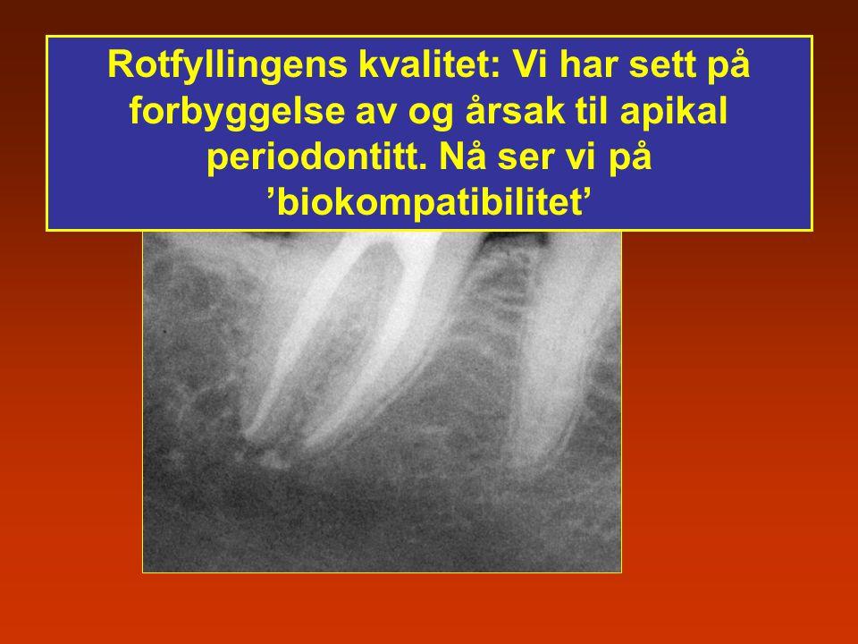 Rotfyllingens kvalitet: Vi har sett på forbyggelse av og årsak til apikal periodontitt. Nå ser vi på 'biokompatibilitet'