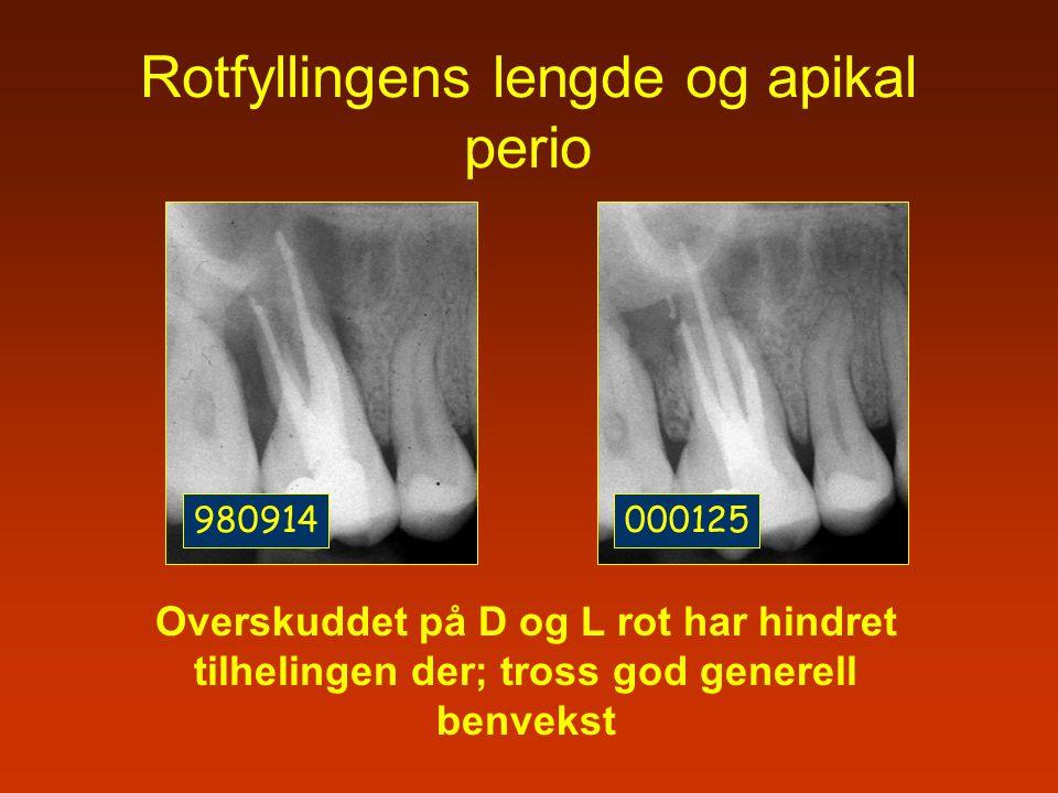980914000125 Rotfyllingens lengde og apikal perio Overskuddet på D og L rot har hindret tilhelingen der; tross god generell benvekst