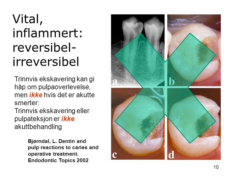 10 Vital, inflammert: reversibel- irreversibel Bjørndal, L. Dentin and pulp reactions to caries and operative treatment. Endodontic Topics 2002 Trinnv