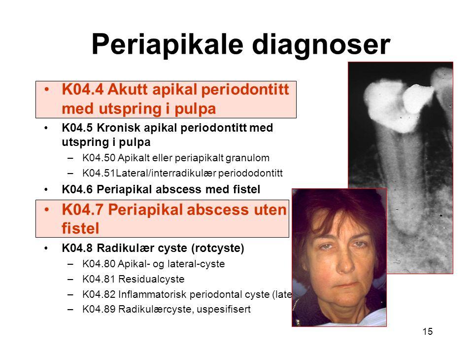 15 K04.4 Akutt apikal periodontitt med utspring i pulpa K04.5 Kronisk apikal periodontitt med utspring i pulpa –K04.50 Apikalt eller periapikalt granulom –K04.51Lateral/interradikulær periododontitt K04.6 Periapikal abscess med fistel K04.7 Periapikal abscess uten fistel K04.8 Radikulær cyste (rotcyste) –K04.80 Apikal- og lateral-cyste –K04.81 Residualcyste –K04.82 Inflammatorisk periodontal cyste (lateral) –K04.89 Radikulærcyste, uspesifisert Periapikale diagnoser