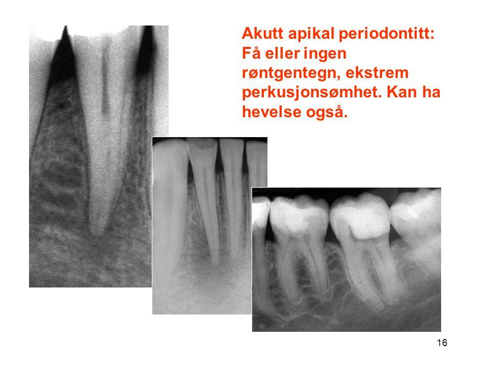 16 Akutt apikal periodontitt: Få eller ingen røntgentegn, ekstrem perkusjonsømhet. Kan ha hevelse også.