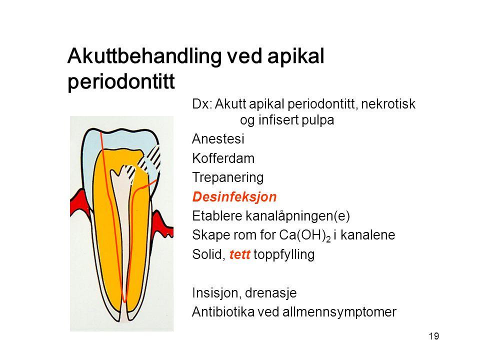 19 Dx: Akutt apikal periodontitt, nekrotisk og infisert pulpa Anestesi Kofferdam Trepanering Desinfeksjon Etablere kanalåpningen(e) Skape rom for Ca(OH) 2 i kanalene Solid, tett toppfylling Insisjon, drenasje Antibiotika ved allmennsymptomer Akuttbehandling ved apikal periodontitt