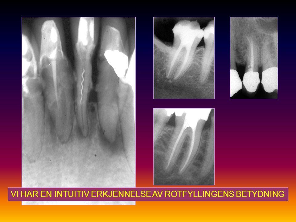 Kan rotfyllingsmaterialet være en årsak til apikal periodontitt.