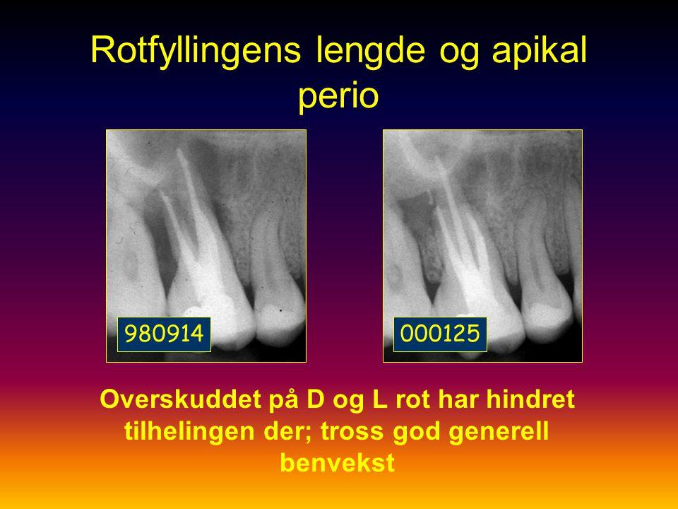 Sjögren et al 1989 Ved behandling av apikal periodontitt er det minst håp ved for kort fylling