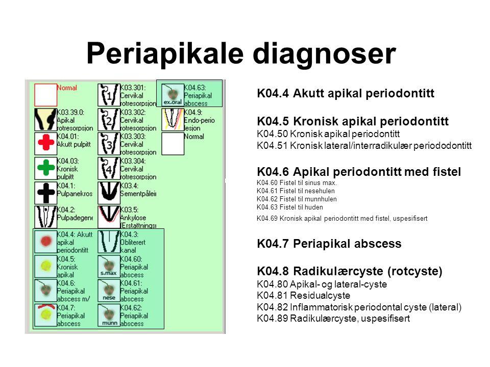 Periapikale diagnoser K04.4 Akutt apikal periodontitt K04.5 Kronisk apikal periodontitt K04.50 Kronisk apikal periodontitt K04.51 Kronisk lateral/interradikulær periododontitt K04.6 Apikal periodontitt med fistel K04.60 Fistel til sinus max.