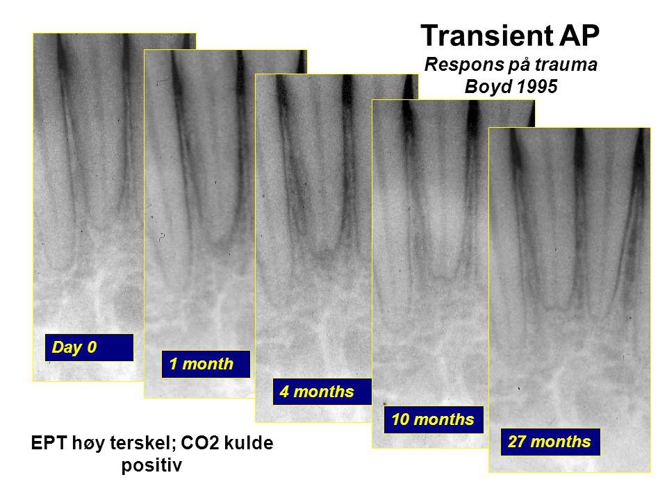 Day 0 Transient AP Respons på trauma Boyd 1995 1 month 4 months 10 months 27 months EPT høy terskel; CO2 kulde positiv