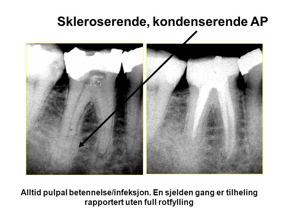 Skleroserende, kondenserende AP Alltid pulpal betennelse/infeksjon.