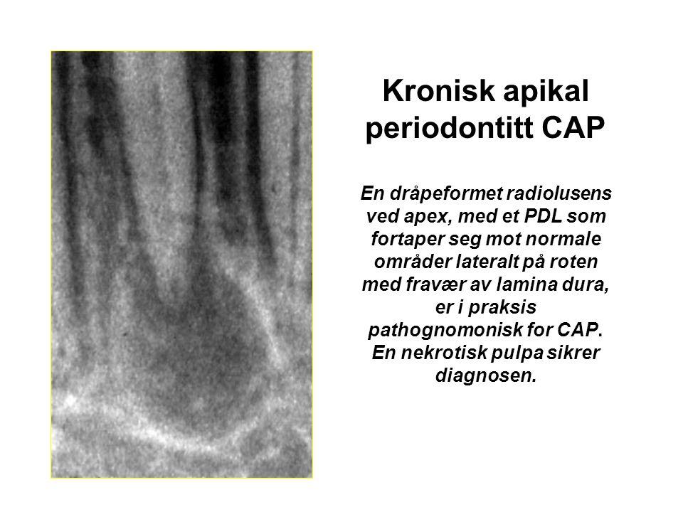 Kronisk apikal periodontitt CAP En dråpeformet radiolusens ved apex, med et PDL som fortaper seg mot normale områder lateralt på roten med fravær av lamina dura, er i praksis pathognomonisk for CAP.