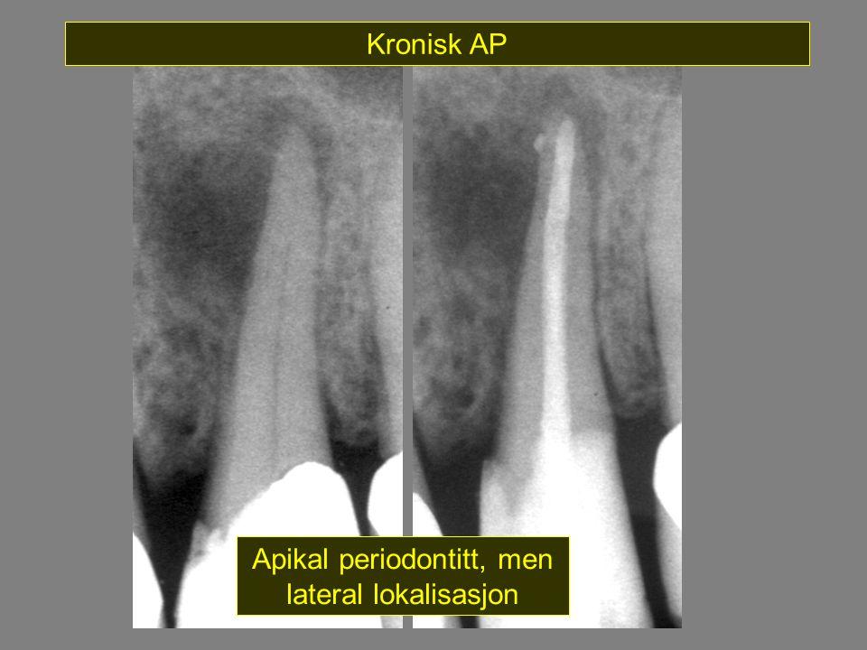 Apikal periodontitt, men lateral lokalisasjon Kronisk AP