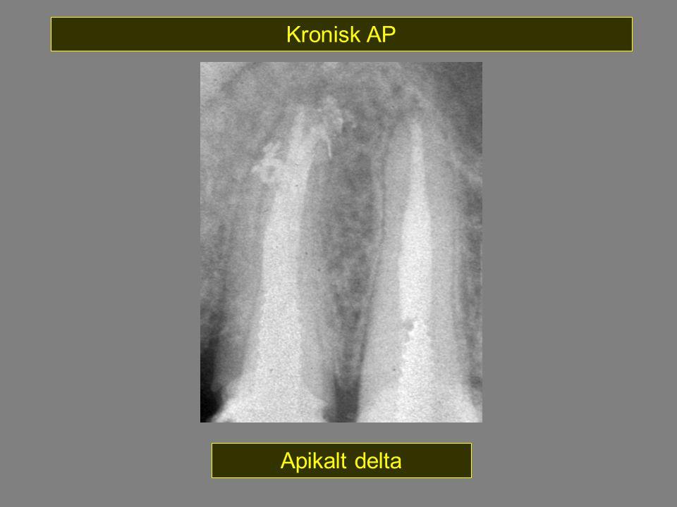 Apikalt delta Kronisk AP