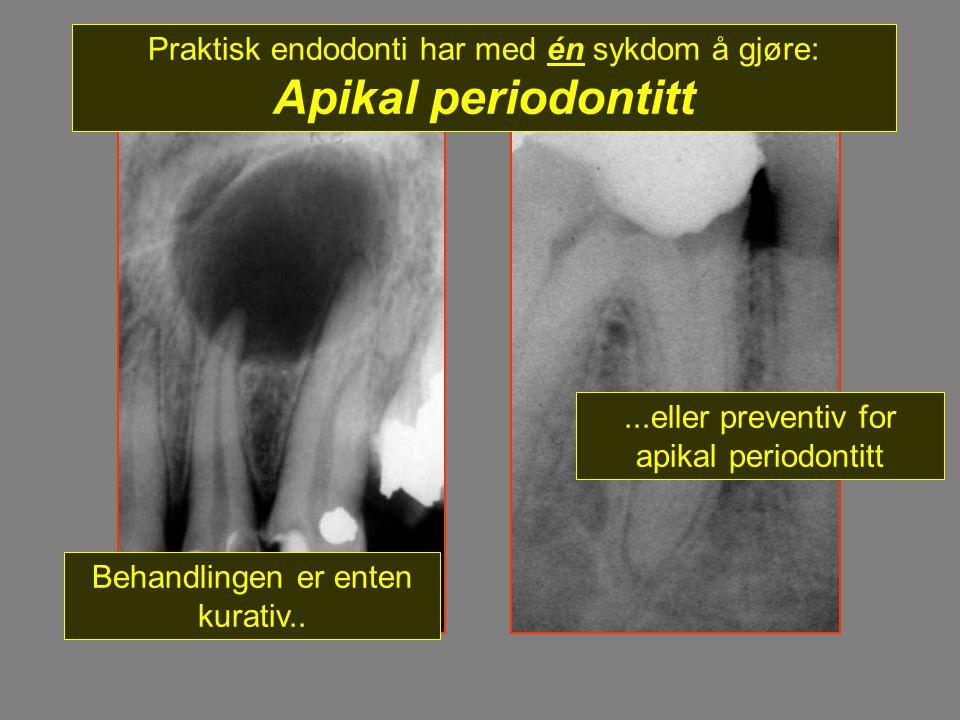 Praktisk endodonti har med én sykdom å gjøre: Apikal periodontitt Behandlingen er enten kurativ.....eller preventiv for apikal periodontitt