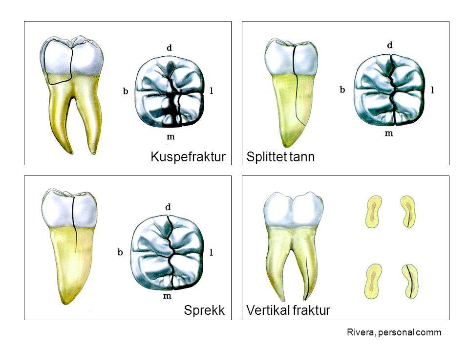 Kuspefraktur Splittet tann Sprekk Vertikal fraktur Rivera, personal comm
