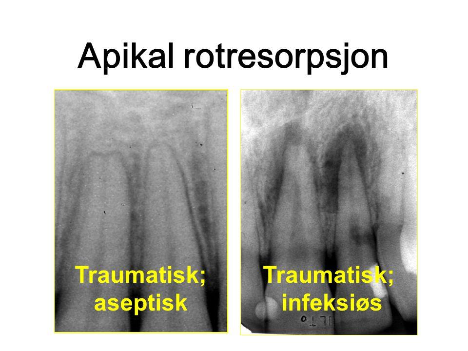 Apikal rotresorpsjon Traumatisk; aseptisk Traumatisk; infeksiøs