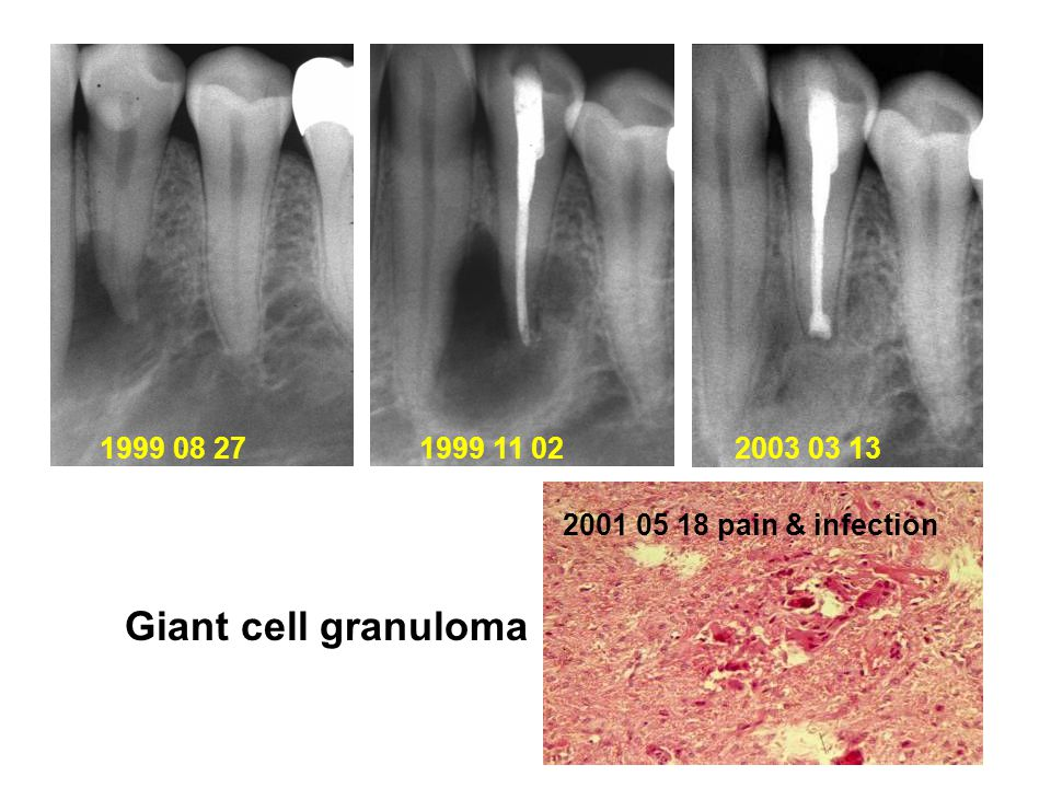 Giant cell granuloma 1999 08 27 2001 05 18 pain & infection 1999 11 022003 03 13