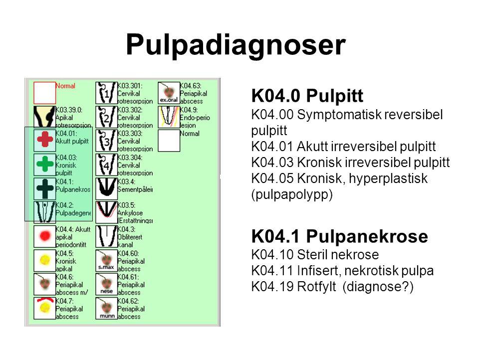 Pulpadiagnoser K04.0 Pulpitt K04.00 Symptomatisk reversibel pulpitt K04.01 Akutt irreversibel pulpitt K04.03 Kronisk irreversibel pulpitt K04.05 Kronisk, hyperplastisk (pulpapolypp) K04.1 Pulpanekrose K04.10 Steril nekrose K04.11 Infisert, nekrotisk pulpa K04.19 Rotfylt (diagnose?)