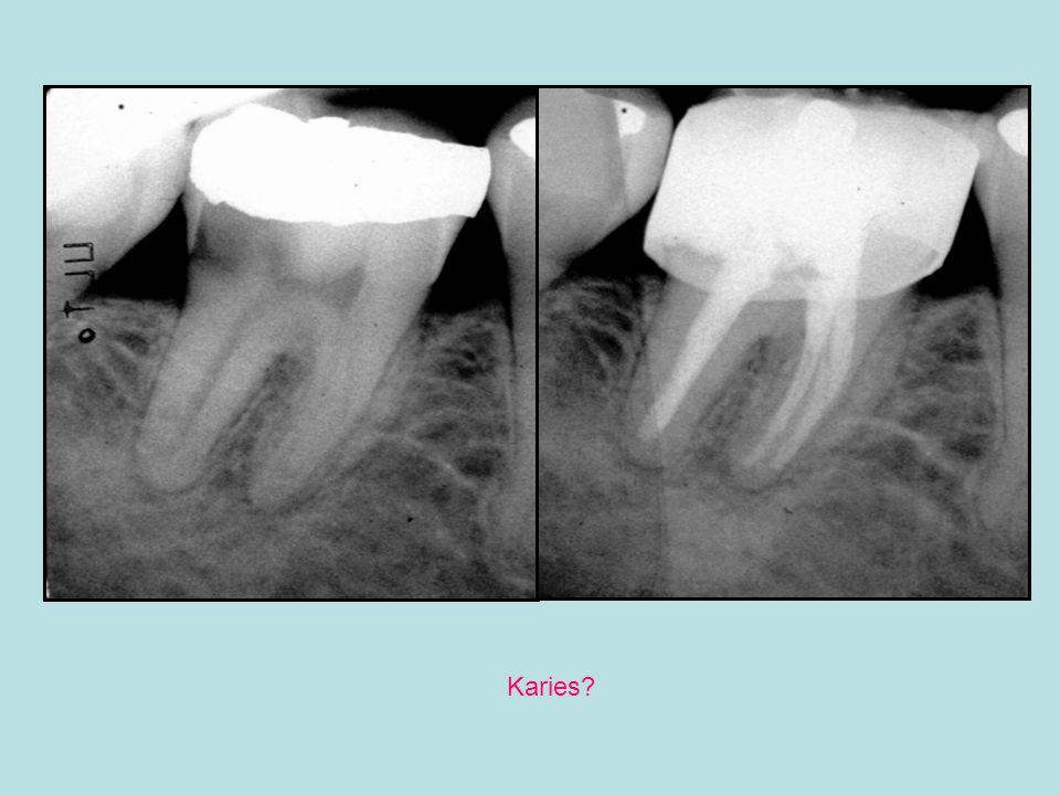 asymptomatisk apikal periodontitt