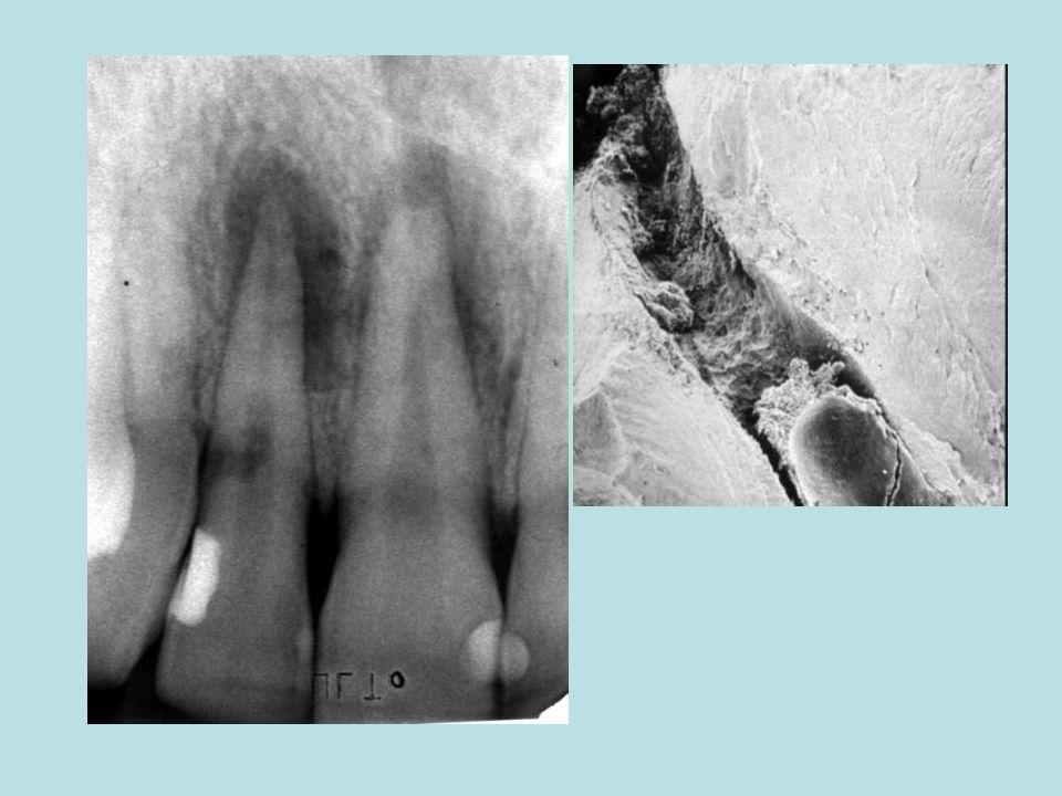 List opp vilkårene for tannresorpsjon Dentin må eksponeres: –Cementum eller predentin må være brutt Det må være bløtvev med blodtilførsel mot dentin –Fra pulpa –Fra periodontiet