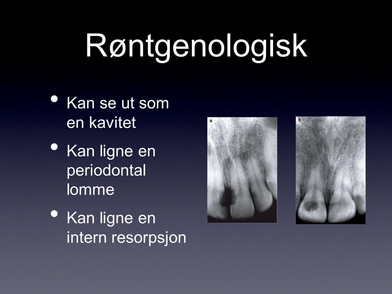Røntgenologisk Kan se ut som en kavitet Kan ligne en periodontal lomme Kan ligne en intern resorpsjon
