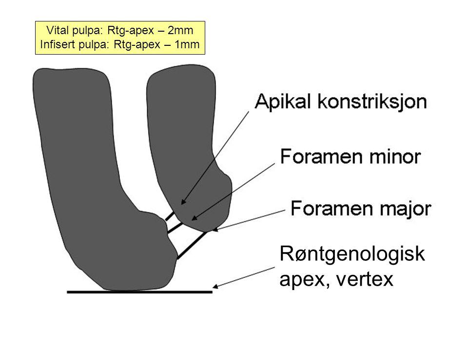 Vital pulpa: Rtg-apex – 2mm Infisert pulpa: Rtg-apex – 1mm Røntgenologisk apex, vertex