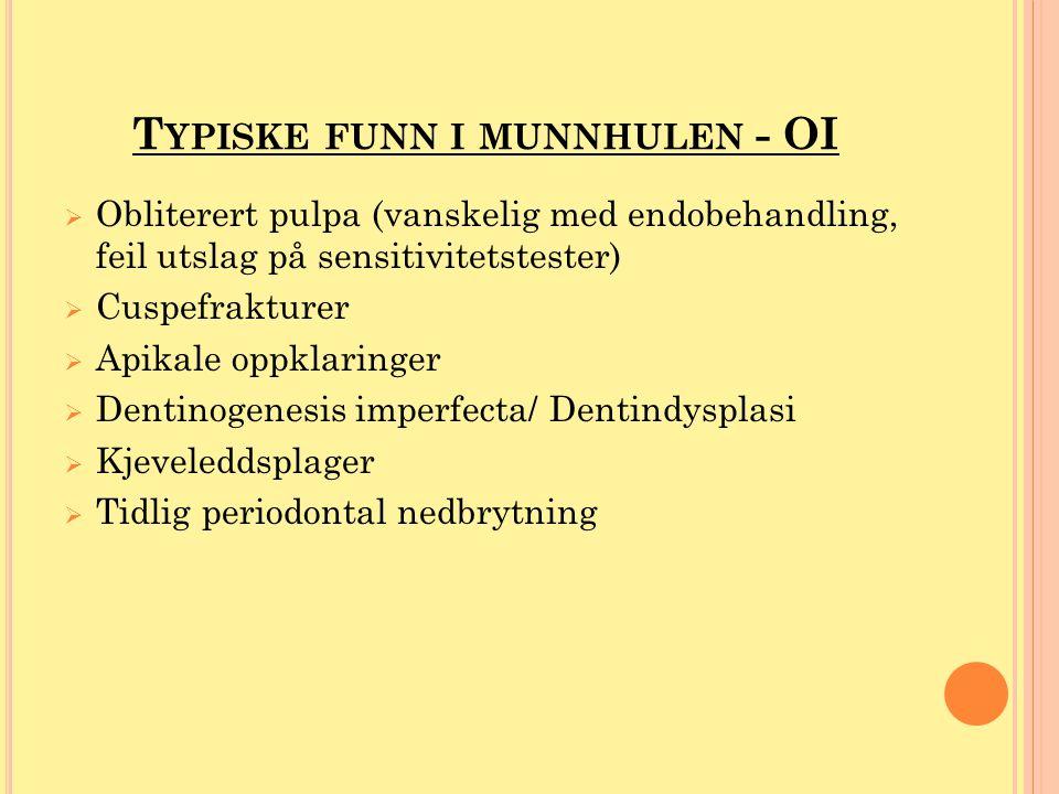 T YPISKE FUNN I MUNNHULEN - OI  Obliterert pulpa (vanskelig med endobehandling, feil utslag på sensitivitetstester)  Cuspefrakturer  Apikale oppkla