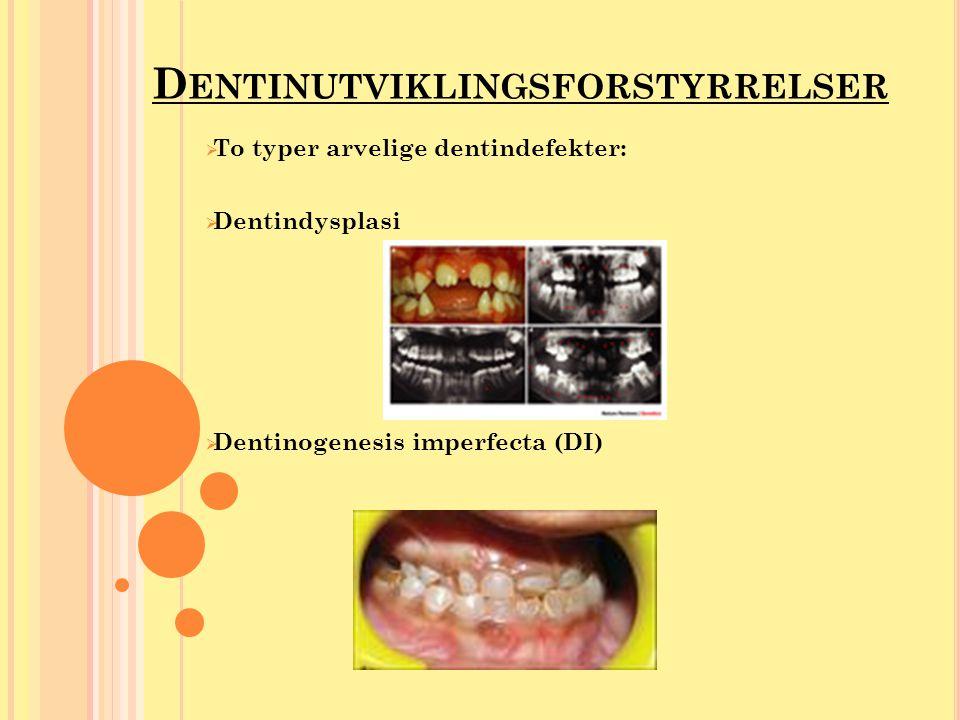D ENTINUTVIKLINGSFORSTYRRELSER  To typer arvelige dentindefekter:  Dentindysplasi  Dentinogenesis imperfecta (DI)