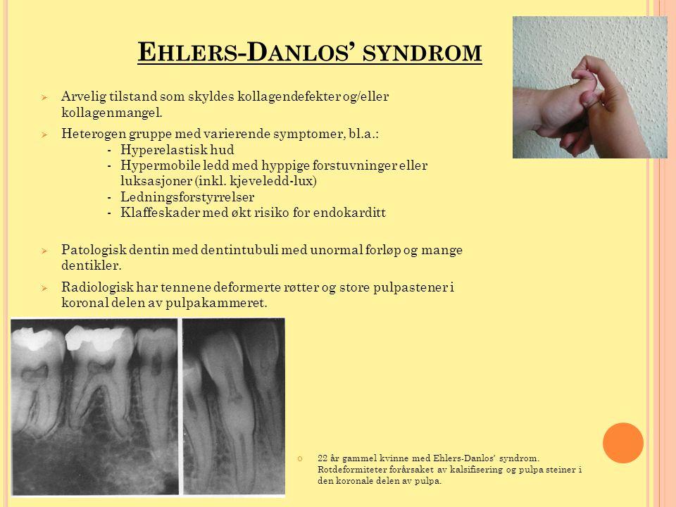E HLERS -D ANLOS ' SYNDROM  Arvelig tilstand som skyldes kollagendefekter og/eller kollagenmangel.  Heterogen gruppe med varierende symptomer, bl.a.