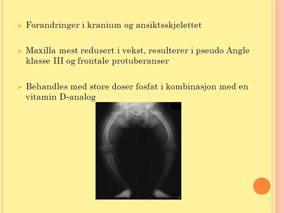  Forandringer i kranium og ansiktsskjelettet  Maxilla mest redusert i vekst, resulterer i pseudo Angle klasse III og frontale protuberanser  Behand