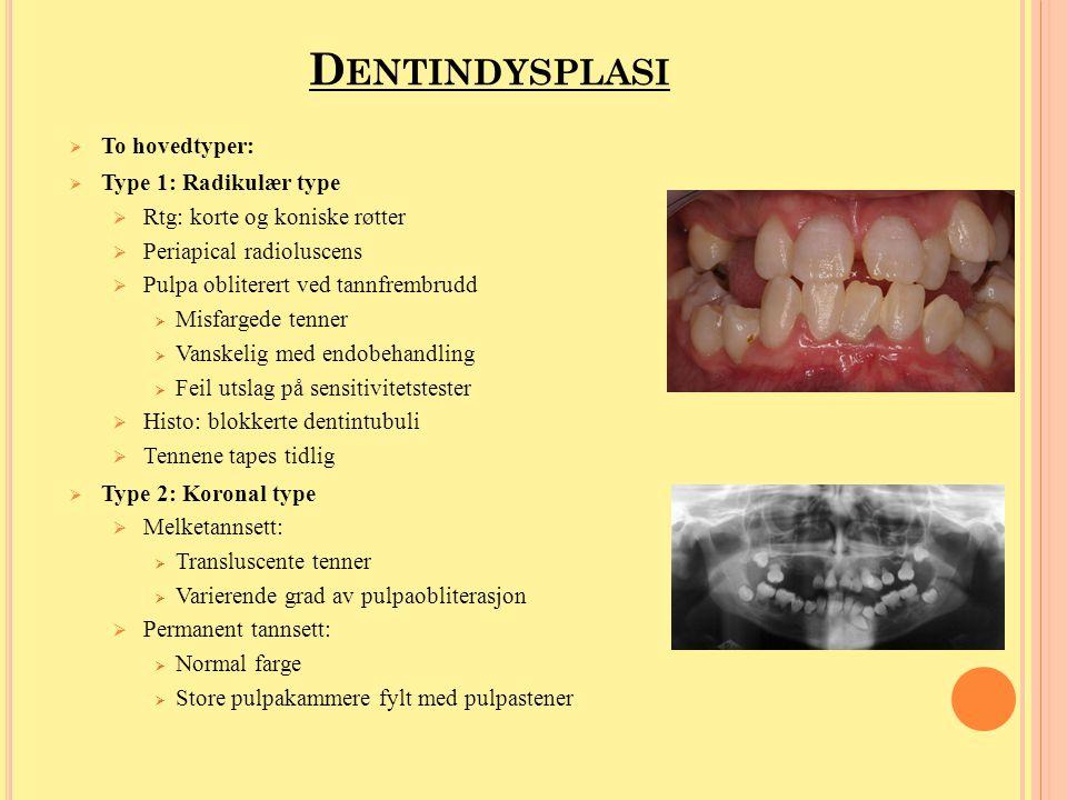 D ENTINOGENESIS I MPERFECTA (DI)  Fire undergrupper  Type 1:  Begge tannsettene affiseres  Kan ligne veldig på tetracyklinmisfargninger og dentindysplasi.