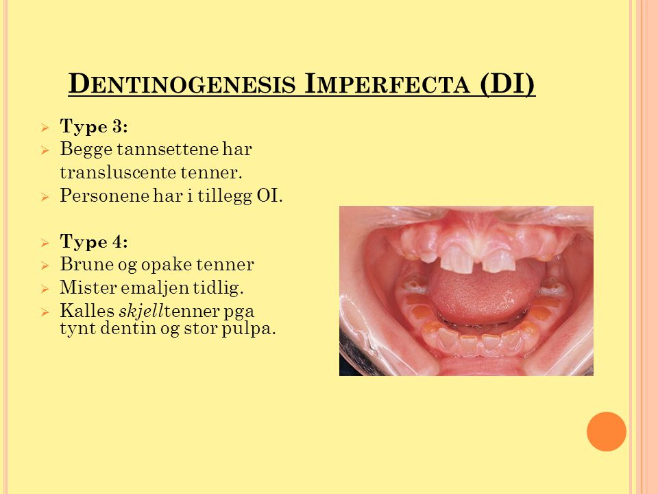 D ENTINOGENESIS I MPERFECTA (DI)  Fellestrekk for all typene DI: - Transluscent utseende - Misfarginger - Cuspefraktur - Emaljen er normal, men frakturerer lett - Attrisjon – blottlegging av dentin - Klokkeformet krone - Kortere røtter - Ikke mer utsatt for karies - Røntgenologisk: opake rotkanaler pga obliterasjon eller ekstremt vide rotkanaler med tynt skjell av dentin -apikale oppklaringer - Mikroskopisk: færre og større dentintubuli
