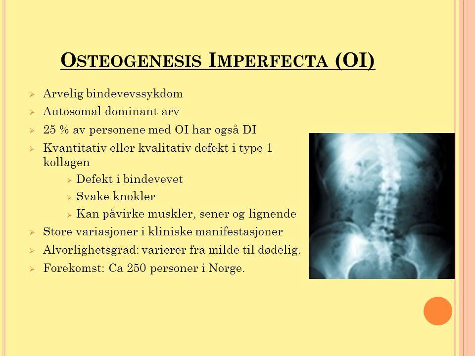 K LASSIFIKASJON - OI  OI-type I: mild60 % - Sjeldent med tannforandringer  OI-type II: perinatal dødelig10 % - 60% dødfødt - 80% dør i første levemåned  OI-type III: alvorlig20 % - Vanlig med tannskader  OI-type IV: moderat10 % - Vanlig med tannskader