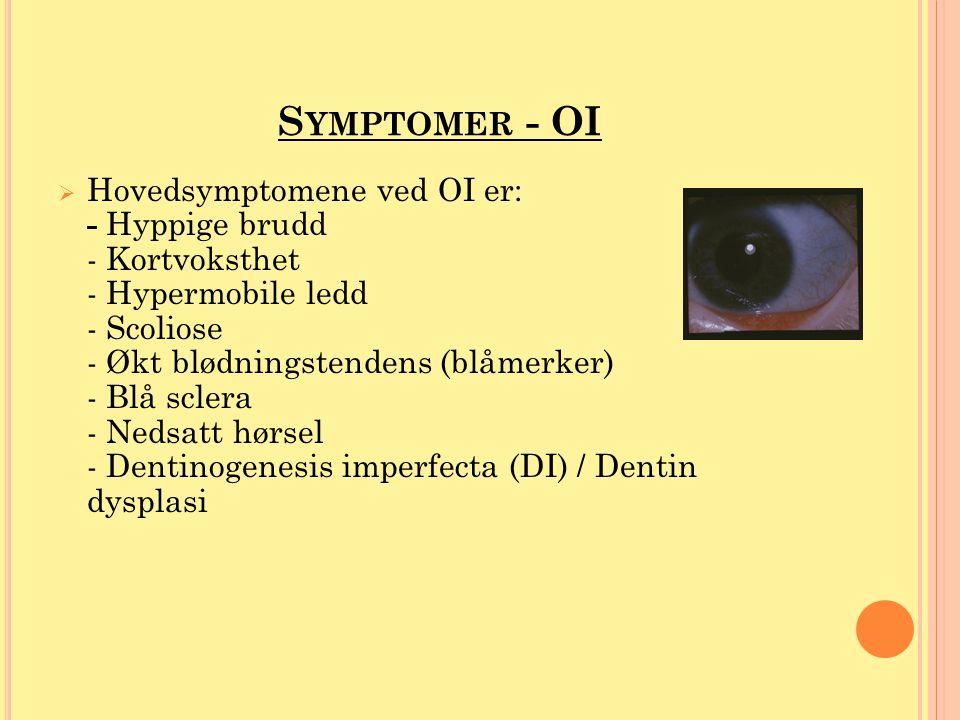 S YMPTOMER - OI  Hovedsymptomene ved OI er: - Hyppige brudd - Kortvoksthet - Hypermobile ledd - Scoliose - Økt blødningstendens (blåmerker) - Blå scl