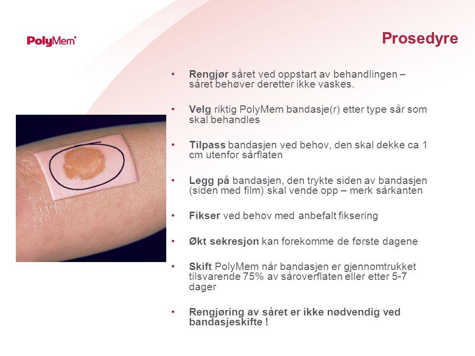 Prosedyre Rengjør såret ved oppstart av behandlingen – såret behøver deretter ikke vaskes.