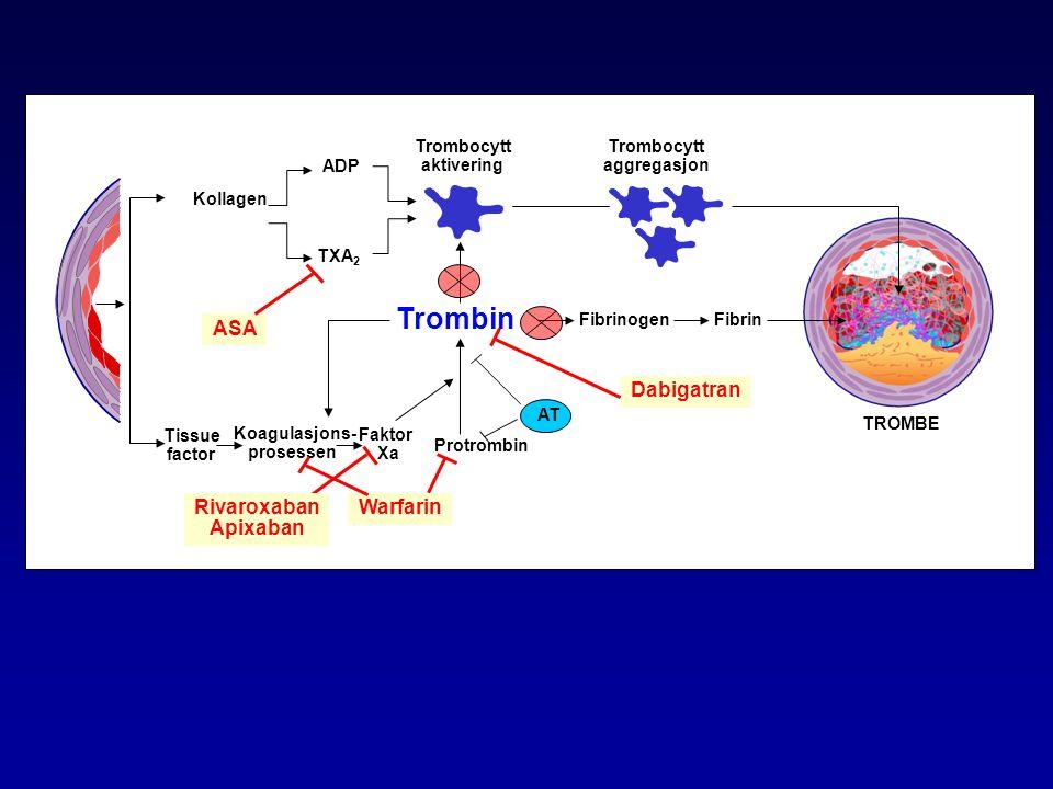 Kollagen Tissue factor Trombin Trombocytt aktivering Protrombin ADP TXA 2 Koagulasjons- prosessen TROMBE FibrinogenFibrin Trombocytt aggregasjon ASA A