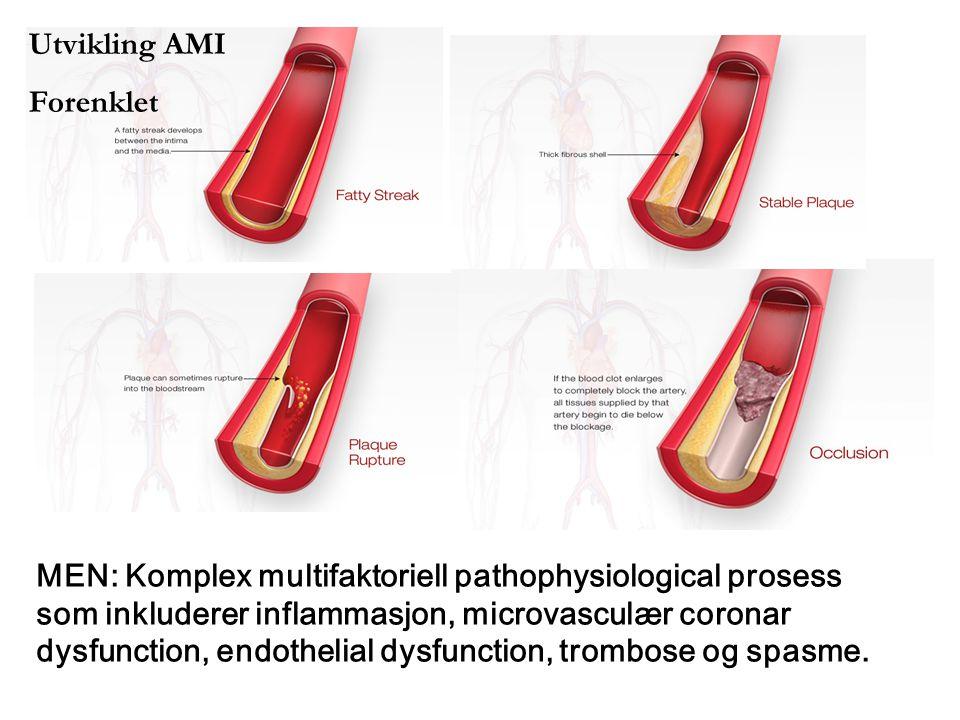 Utvikling AMI Forenklet MEN: Komplex multifaktoriell pathophysiological prosess som inkluderer inflammasjon, microvasculær coronar dysfunction, endoth