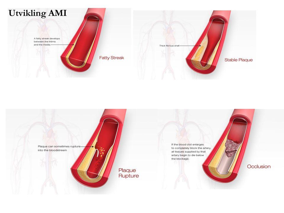 Utvikling AMI