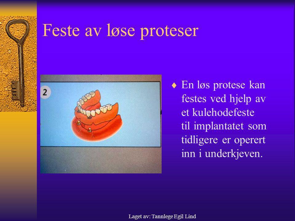 Laget av: Tannlege Egil Lind Feste av løse proteser  En løs protese kan festes ved hjelp av et kulehodefeste til implantatet som tidligere er operert inn i underkjeven.