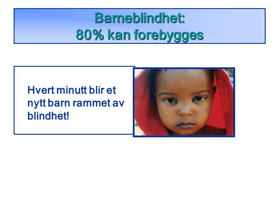 Barneblindhet: 80% kan forebygges Hvert minutt blir et nytt barn rammet av blindhet!
