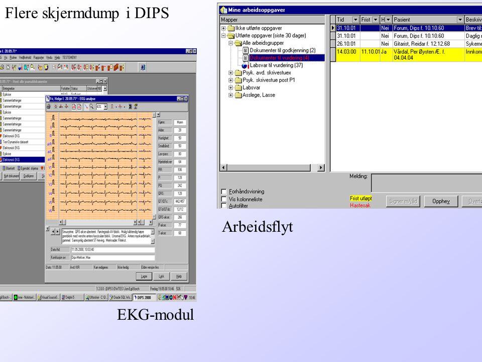 Flere skjermdump i DIPS Arbeidsflyt EKG-modul