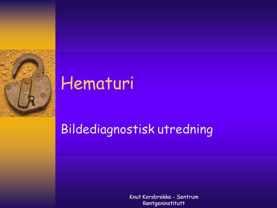 Knut Korsbrekke - Sentrum Røntgeninstitutt Mikroskopisk hematuri  Noe ulike definisjoner –Mer enn 3-5 røde pr synsfelt ved mikroskopi (high powered field) ansees signifikant –Mikroskopi fordel mtp evnt sylindre (glomerulær nyresykdom) –Evnt fasekontrast