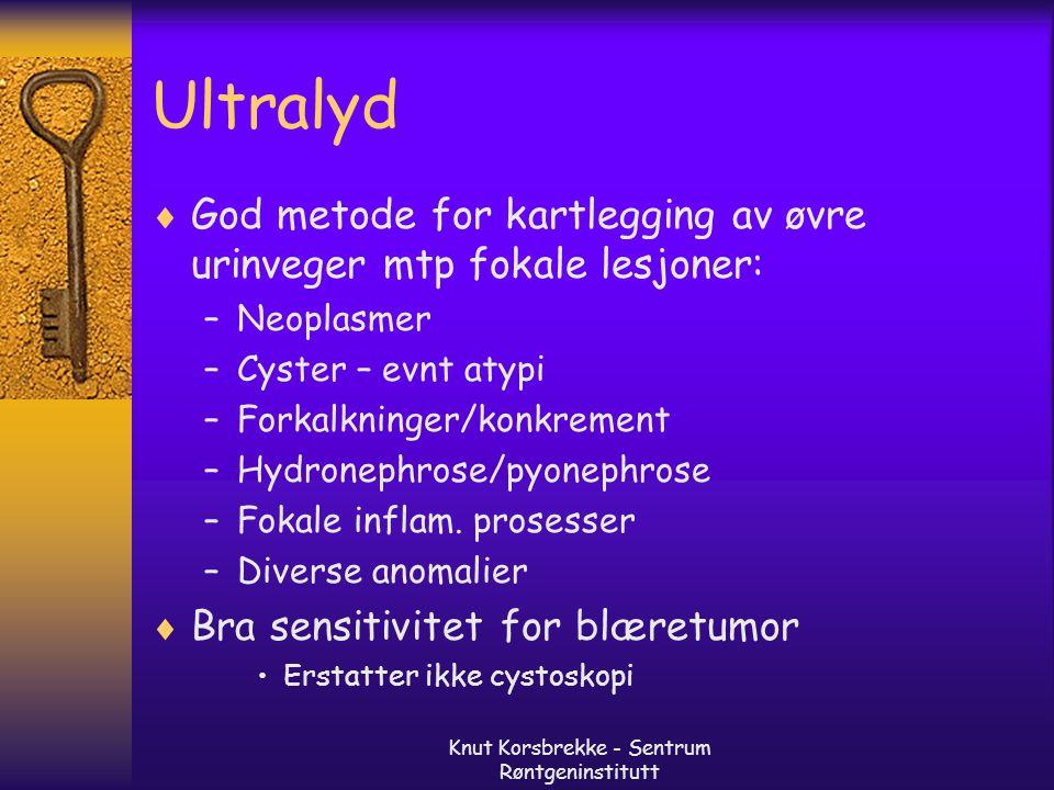 Knut Korsbrekke - Sentrum Røntgeninstitutt Ultralyd  God metode for kartlegging av øvre urinveger mtp fokale lesjoner: –Neoplasmer –Cyster – evnt aty