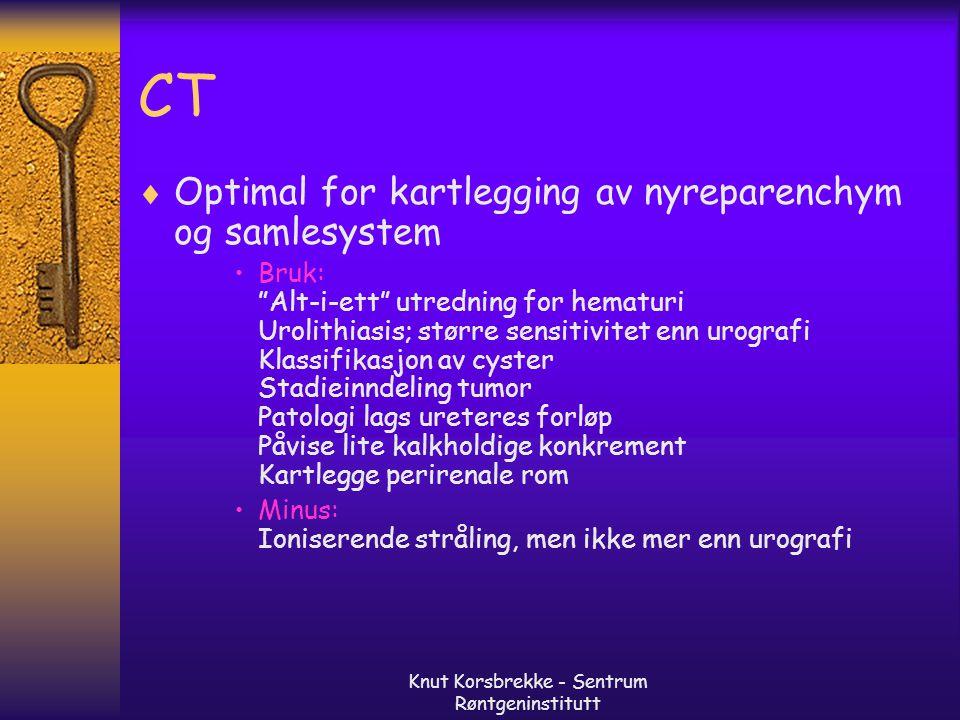 """Knut Korsbrekke - Sentrum Røntgeninstitutt CT  Optimal for kartlegging av nyreparenchym og samlesystem Bruk: """"Alt-i-ett"""" utredning for hematuri Uroli"""
