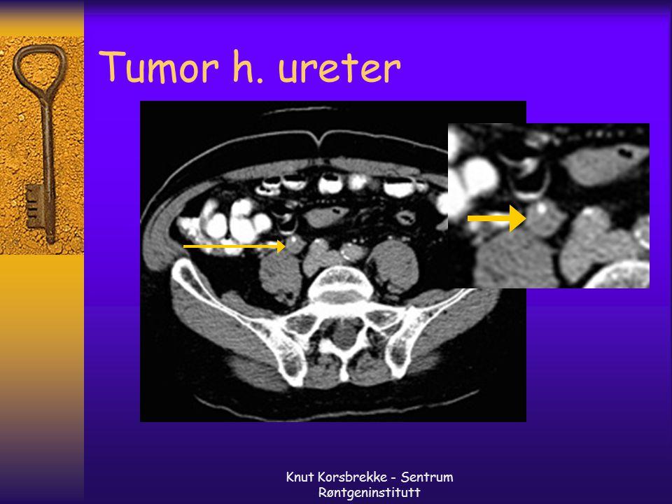 Knut Korsbrekke - Sentrum Røntgeninstitutt Tumor h. ureter