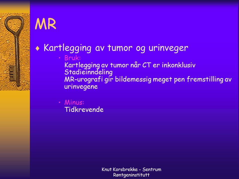 Knut Korsbrekke - Sentrum Røntgeninstitutt MR  Kartlegging av tumor og urinveger Bruk: Kartlegging av tumor når CT er inkonklusiv Stadieinndeling MR-