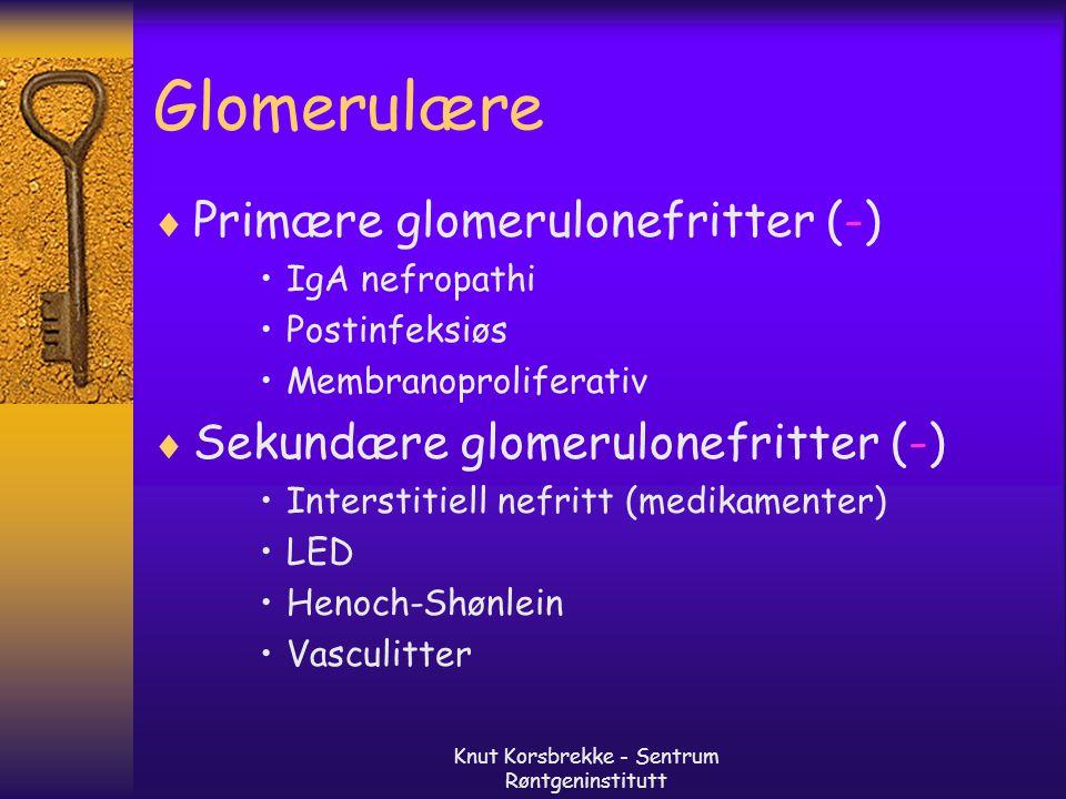 Knut Korsbrekke - Sentrum Røntgeninstitutt Glomerulære  Primære glomerulonefritter (-) IgA nefropathi Postinfeksiøs Membranoproliferativ  Sekundære