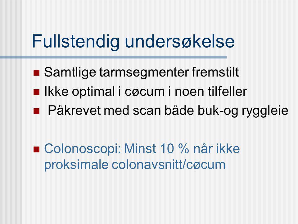 Fullstendig undersøkelse Samtlige tarmsegmenter fremstilt Ikke optimal i cøcum i noen tilfeller Påkrevet med scan både buk-og ryggleie Colonoscopi: Mi